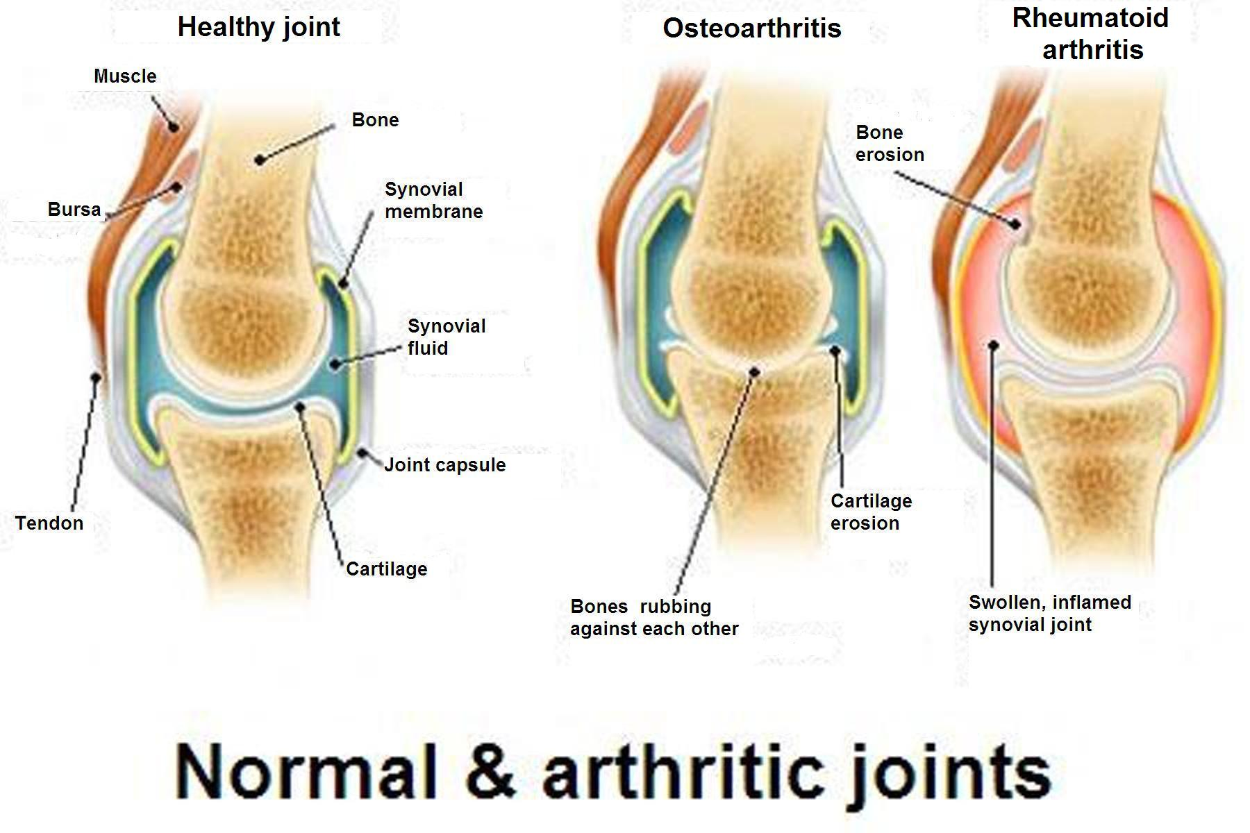 healthy joint, joint with osteoarthritis, joint with rhematoid arthritis